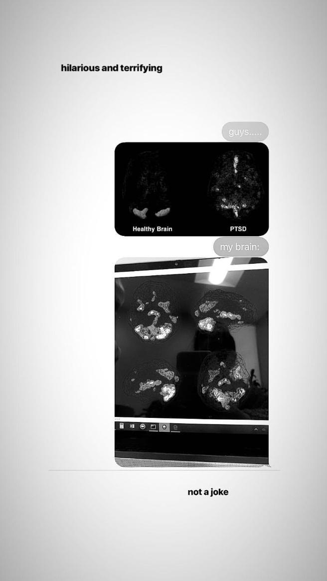 Ariana Grande: fotos de daño cerebral que sufre d Manchester