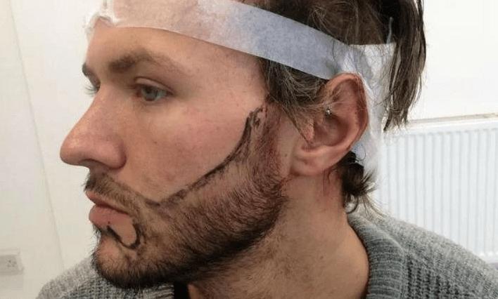 Los transplantes de barba nueva tendencia en Perú