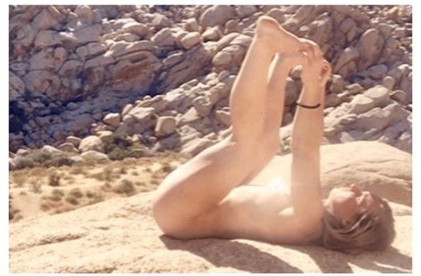 Josh Brolin se quemó el ano tras asolearse