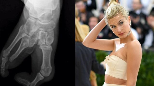 Hailey Baldwin revela cuál es la rara enfermedad que padece