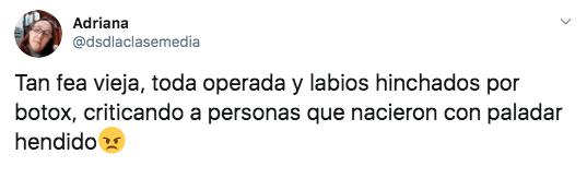 "Conductora se burla del ""labio leporino"" de Joaquín Phoenix"