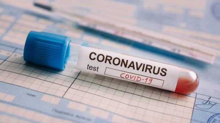 Pruebas para coronavirus resultaron infectadas con covid-19