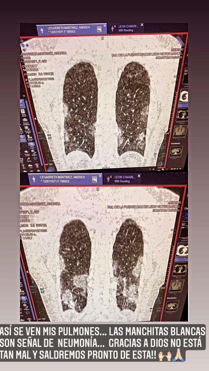 Andrea Legarreta muestra el daño en sus pulmones por la Covid-19