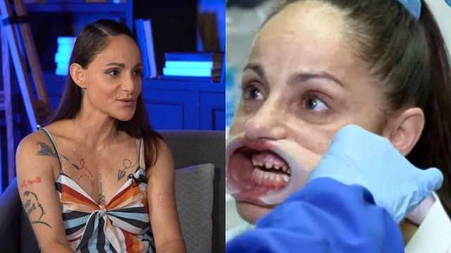Lolita Cortés dientes