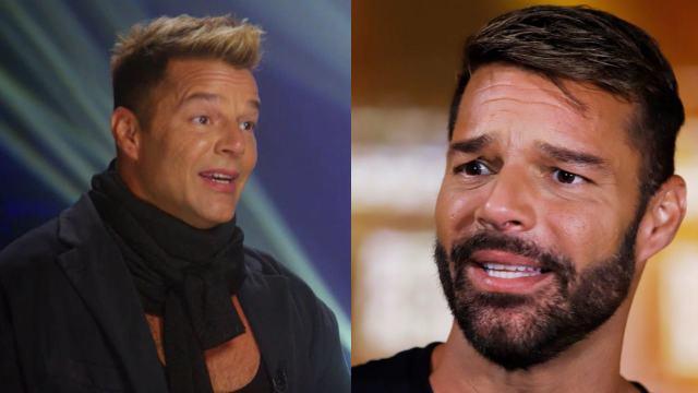 Ricky Martín rostro cirugía hinchado