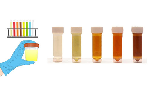 Hangi İdrar Rengi Hastalığın Habercisidir? İdrar Rengi Ve Anlamları