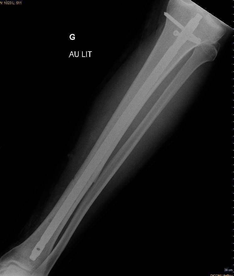 Placa radiográfica después de que se retiró el fijador de la pierna del cliente. El clavo y los tornillos permanecen.
