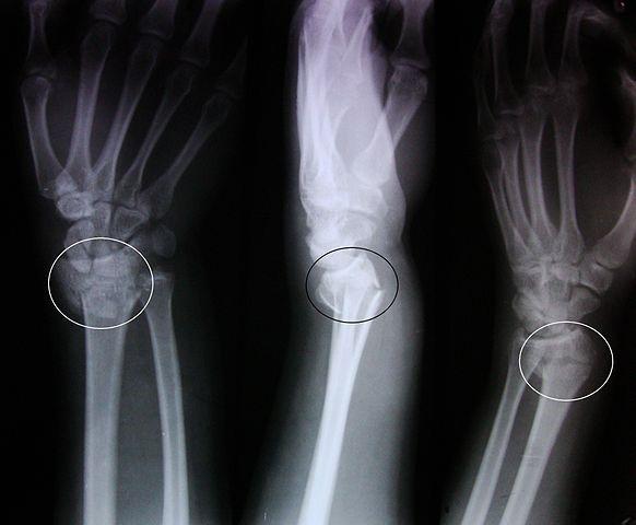Imagen radiográfica de una fractura de Colles en el radio