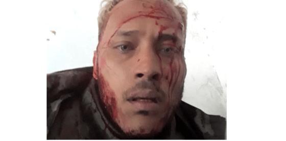 Acorralado y herido, piloto Óscar Perez denuncia en vivo que régimen de Maduro lo quiere matar