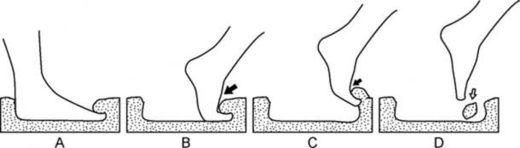 impresiones ángulos de presión pie