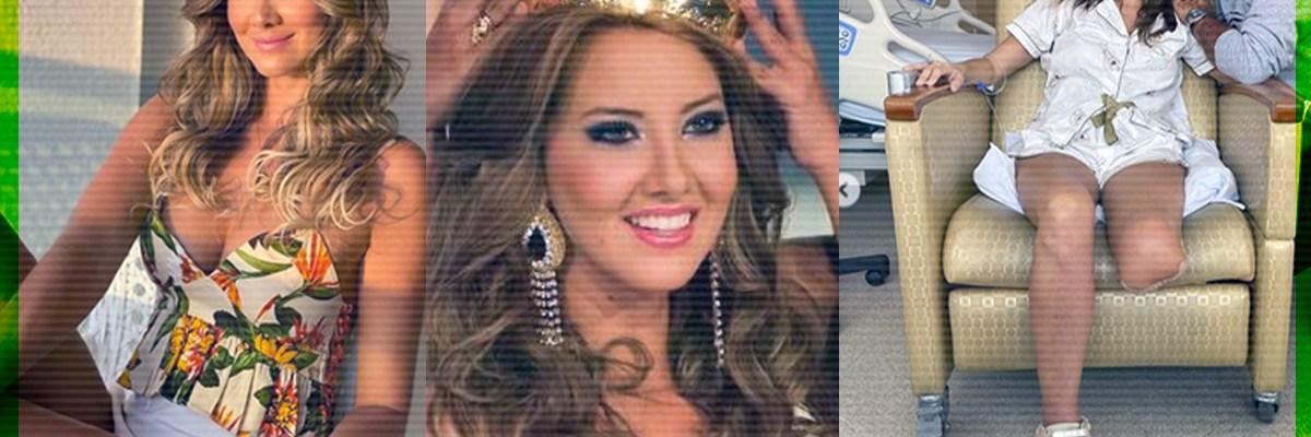 Conoce a Daniela Álvarez, la exreina de belleza que perdió el pie