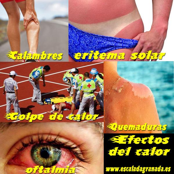 Efectos del calor. Primeros auxilios