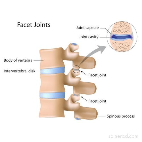 degenerative disc, facet
