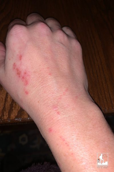 My raw, excoriated skin from scratching, day 3 of Zyrtec withdrawal