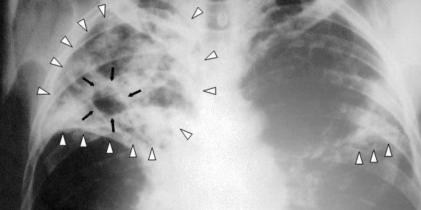 radiografía de tuberculosis muy avanzada
