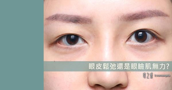 眼皮鬆弛還是眼瞼肌無力?
