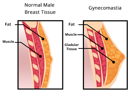 Gynecomastia pathology