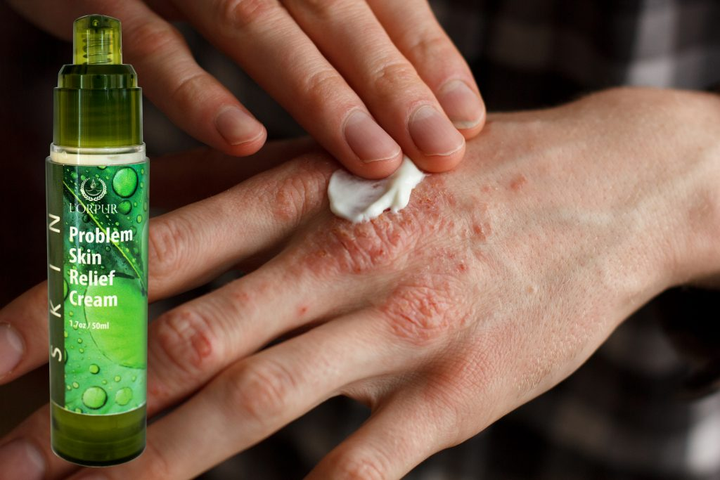 Don't Let Blisters Stop You From Having Fun Or Working Hard! Let Essential Oils Deal With Them! Essential Oil Benefits