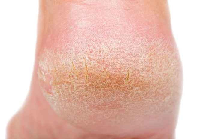 what is calluses