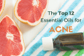 oil for acne, essential oil for acne