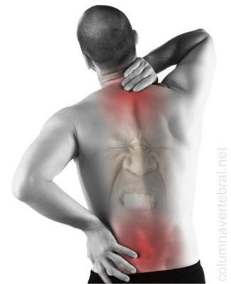 La fibromialgia y el dolor de espalda