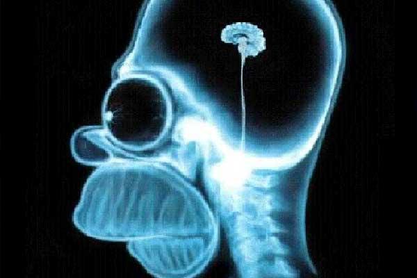 Radiografía de Homer Simpson