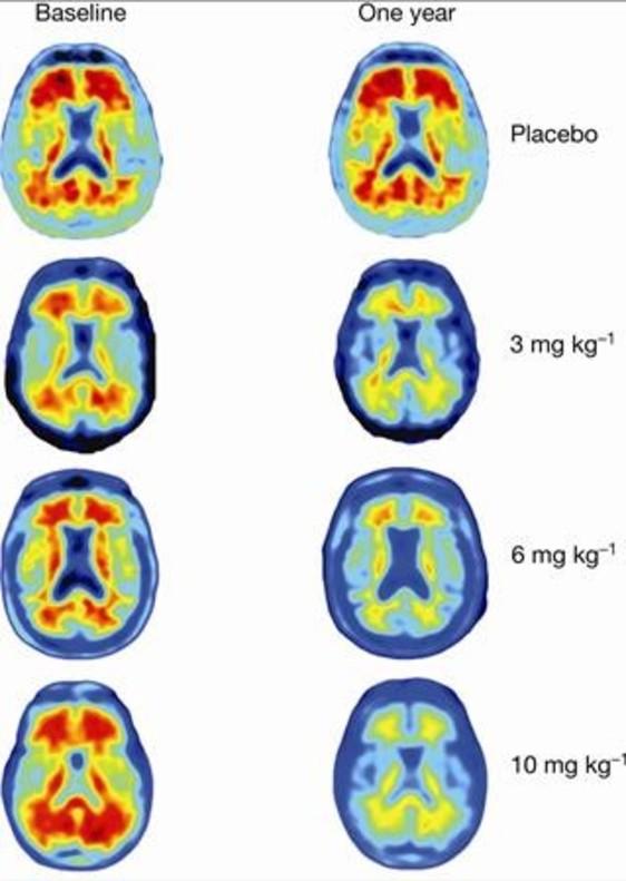 Esperançador fàrmac contra l'Alzheimer