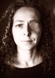 Ester Quintana, perdió un ojo en la manifestación de la huelga general, el 14 de noviembre de 2012.