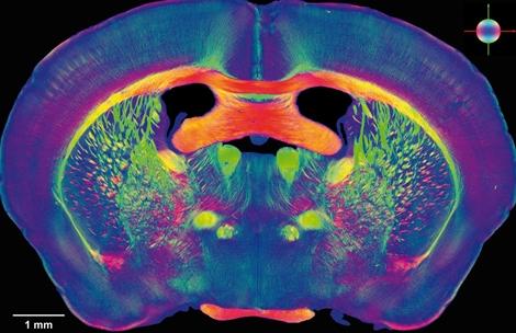 Radiografía de un cerebro humano. | Human Brain Project