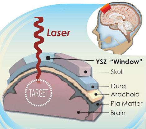 El implante transparente fabricado con YSZ se coloca en el cráneo y permite ver el cerebro.| Mayo Kodera.