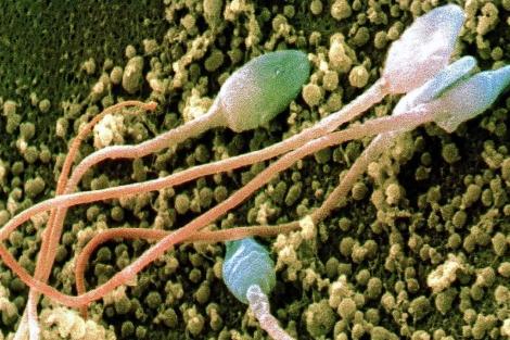 Espermatozoides humanos vistos al microscopio. | Science
