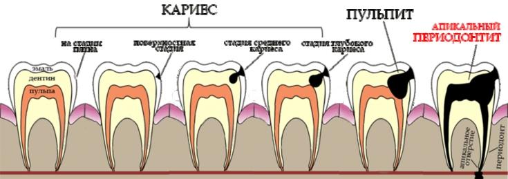 Witte vlekken op de tanden veroorzaken