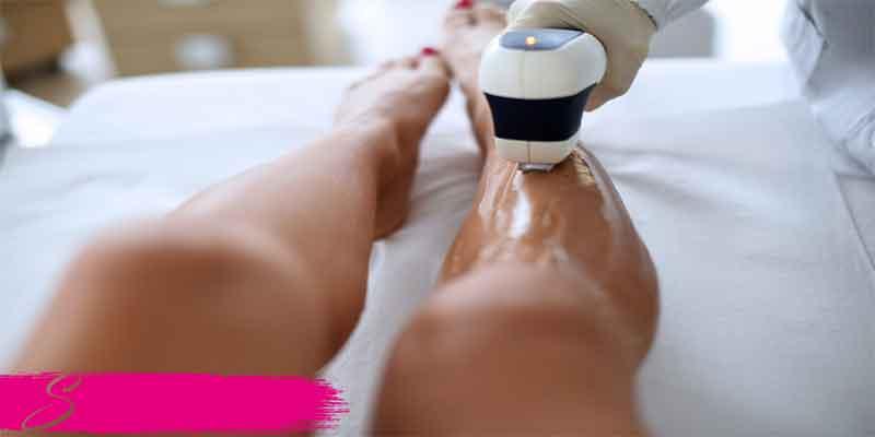 epilazione-laser-permanente- diodo sensazioni contro la cellulite