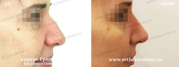 Ринопластика носа с горбинкой   Фото до и после   ИД 764