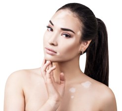Traitement du vitiligo Nice et cannes