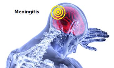 Meningitis: Tipos, formas de contagio y prevención 0
