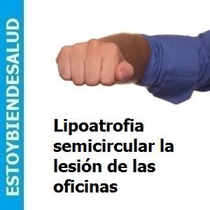 Lipoatrofia semicircular la lesión de las oficinas, Lipoatrofia semicircular, la lesión de las oficinas