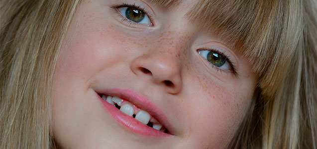 Cuando es recomendable la ortodoncia infantil