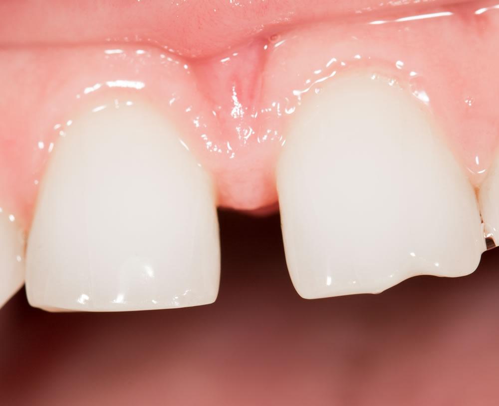 Corregir diastema dientes separados Barcelona