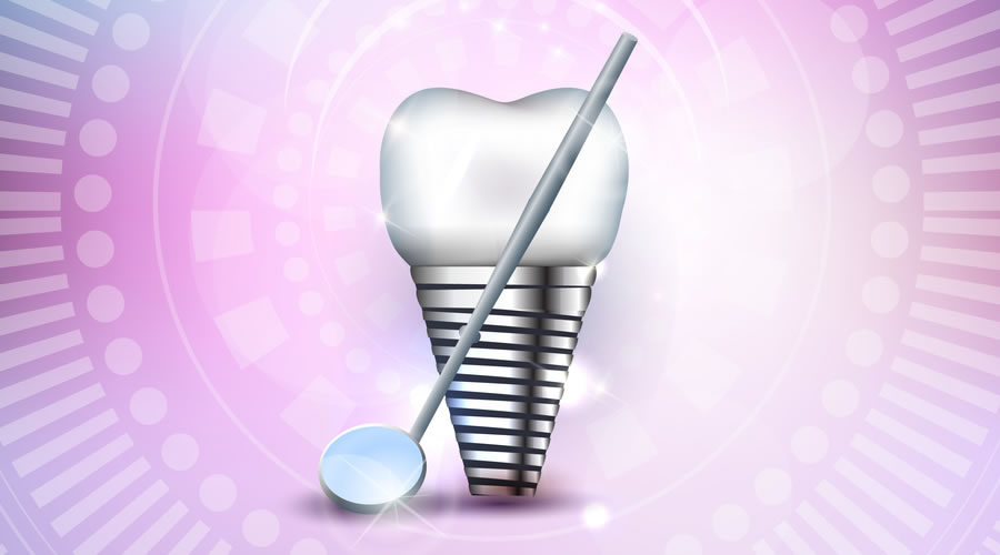 higiene implantes dentales