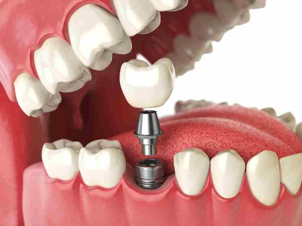 Tipos de tornillos para implantes dentales