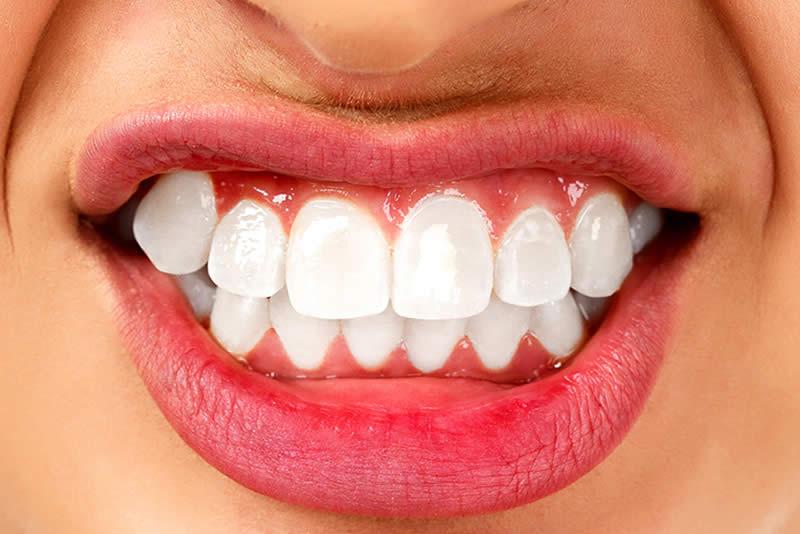 Estrés desgaste dental y Bruxismo