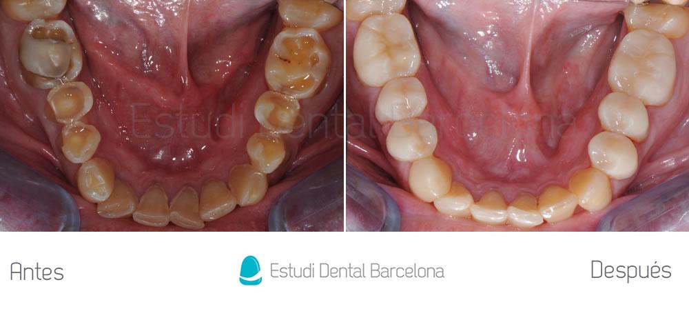 dientes-cortos-o-desgastados-caso-clinico-carillas-abajo