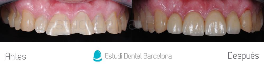 dientes-cortos-o-desgastados-caso-clinico-carillas-arcada-superior