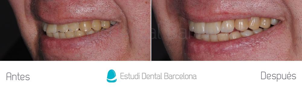 dientes-cortos-o-desgastados-caso-clinico-carillas-izquierda