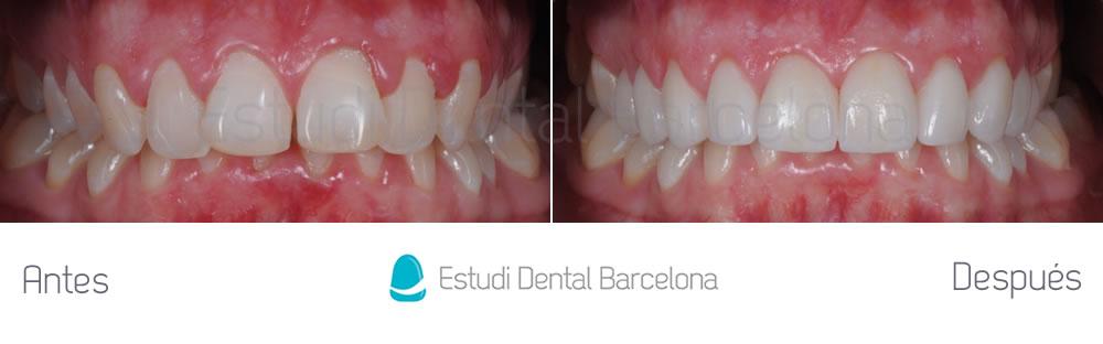 dientes-detras-de-otros-caso-clinico-carillas-dentales-apretando
