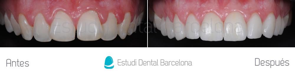 dientes-detras-de-otros-caso-clinico-carillas-dentales-arcada-superior