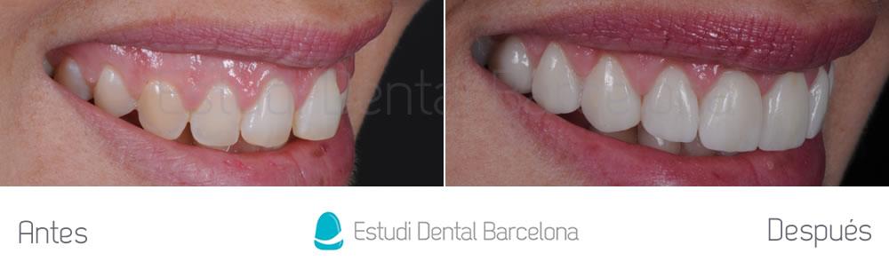 dientes-detras-de-otros-caso-clinico-carillas-dentales-derecha