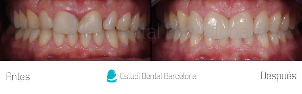 dientes-rotos-caso-clinico-carillas-de-porcelana-apretando