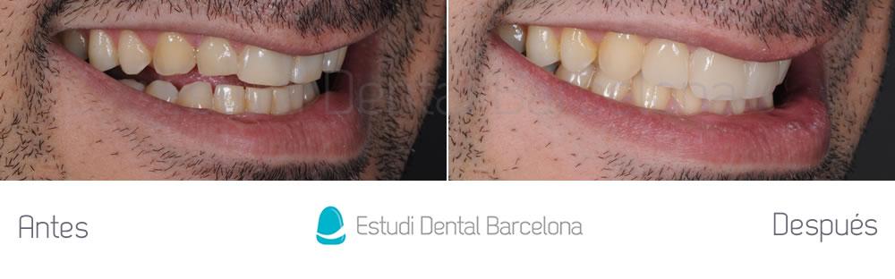 dientes-rotos-caso-clinico-carillas-de-porcelana-derecha